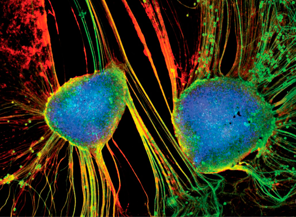 Flexible CNT networks can provide a scaffold that promotes neuronal growth